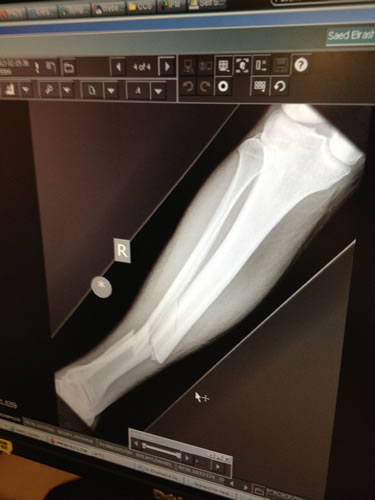 X ray showing the break before operation
