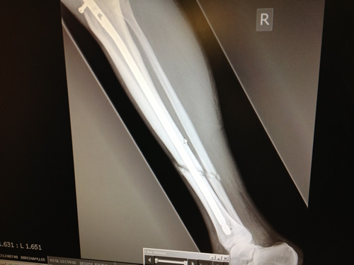 X ray showing metal rod and the break